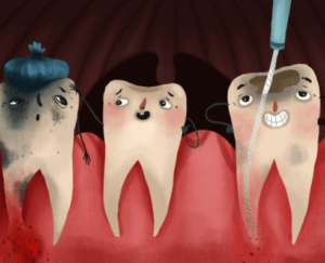 Average Cost of a Root Canal